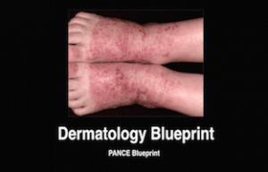 Dermatology, Dermatologic, PANCE Review Courses, PANRE Review Courses, PANCE Review, PANRE Review, PANCE, PANRE, Physician Assistant, NCCPA Blueprint, COMLEX, USMLE, Free CME, CME
