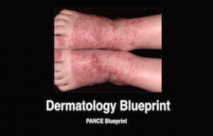 Dermatology, Dermatologic, PANCE Review Courses, PANRE Review Courses, PANCE Review, PANRE Review, PANCE, PANRE, Physician Assistant, NCCPA Blueprint, COMLEX, USMLE, Free CME, CME